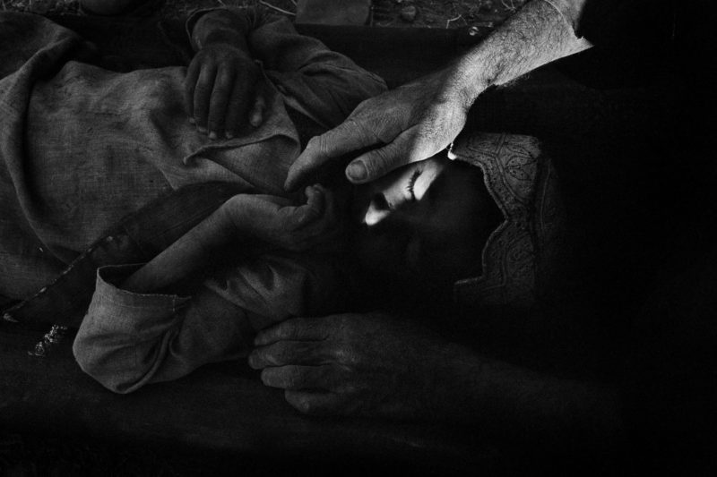 Stephen Dupont - A wounded Afghan boy who had been shot in crossfire during a battle between US soldiers and Taliban in Gonbaz village, Kandahar Province, Afghanistan, 2005